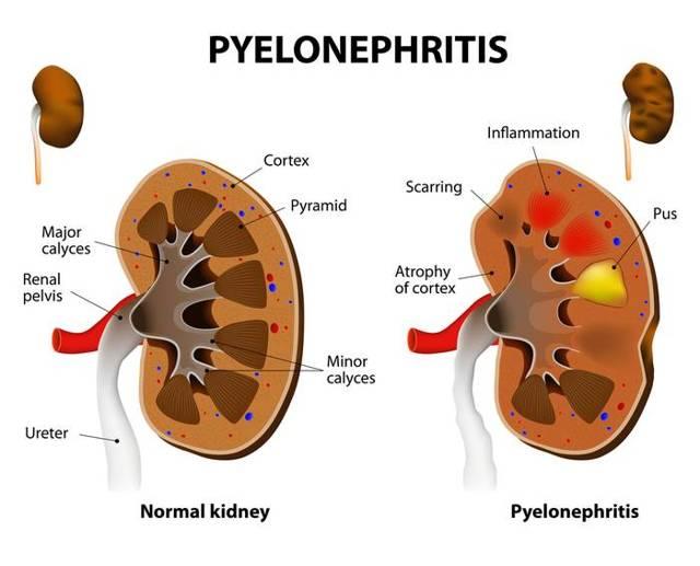 Симптомы и диагностика пиелонефрита