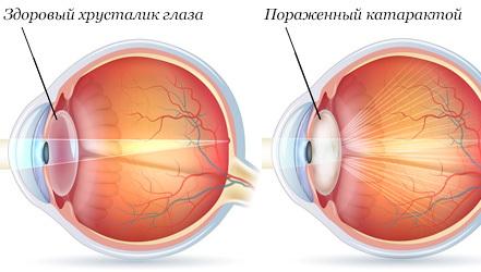 Лечебное питание при катаракте