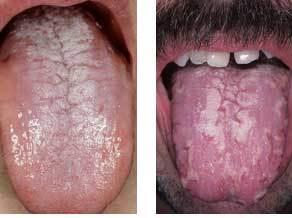 Кандидоз: патогенез и клинические результаты лечения