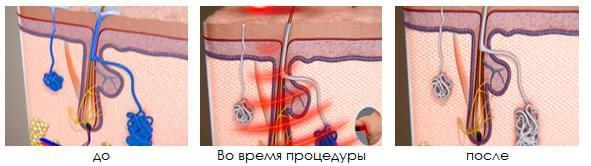Гипергидроз: диагностика и лечение